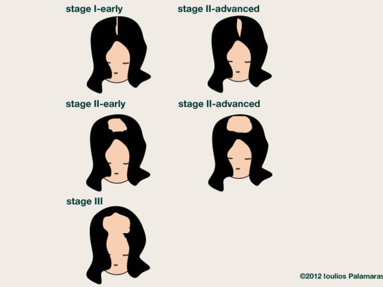 The Ludwig classification for female type of androgenetic alopecia