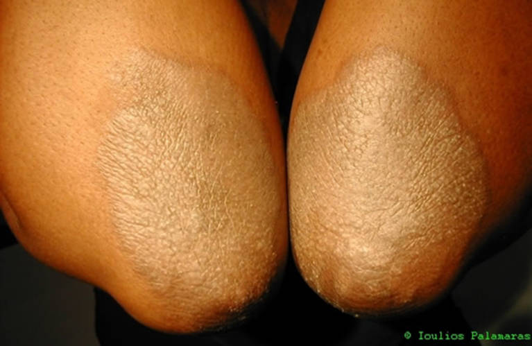 Skin Rashes and General Skin Problems | Ioulios Palamaras MD PhD
