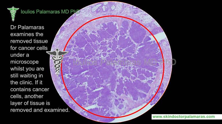 cancer MMS Testimonials 2789598 - academia-salamanca info